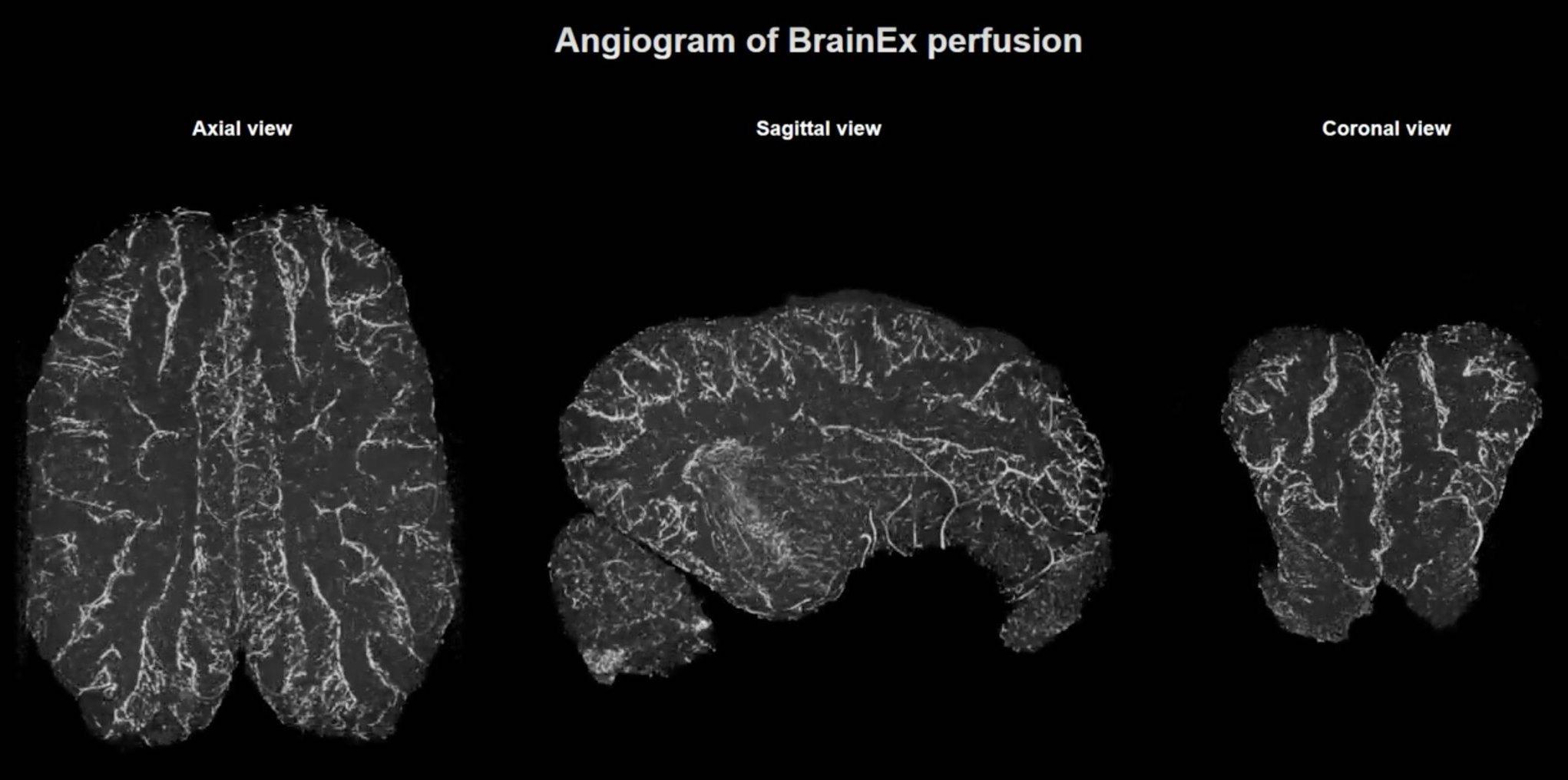pig brain scans